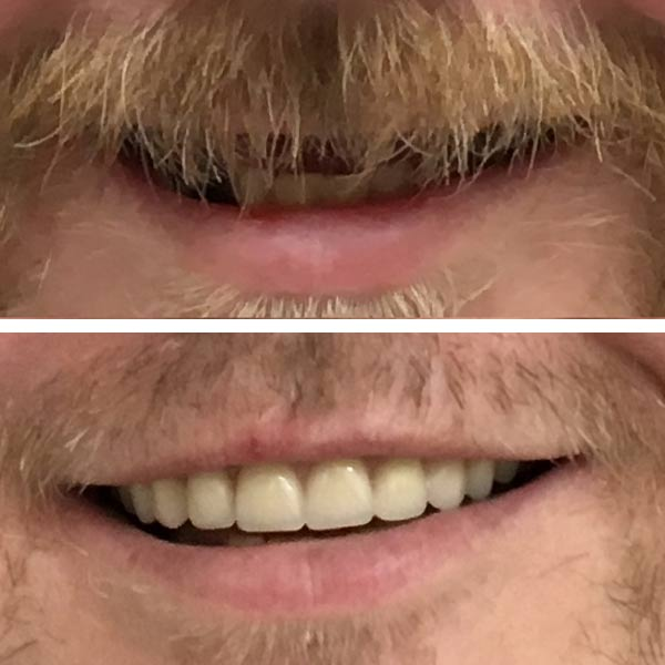 before and afters of teeth